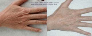 Before & After Example of SkinTech Treatment for Poor Elasticity